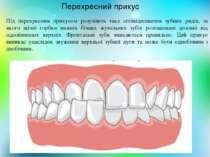 Перехресний прикус Під перехресним прикусом розуміють таке співвідношення зуб...