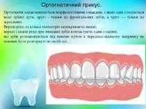 Ортогнатія характеризується морфологічними ознаками, з яких одні стосуються в...