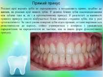 Різальні краї верхніх зубів не перекривають, а потрапляють прямо, подібно до ...