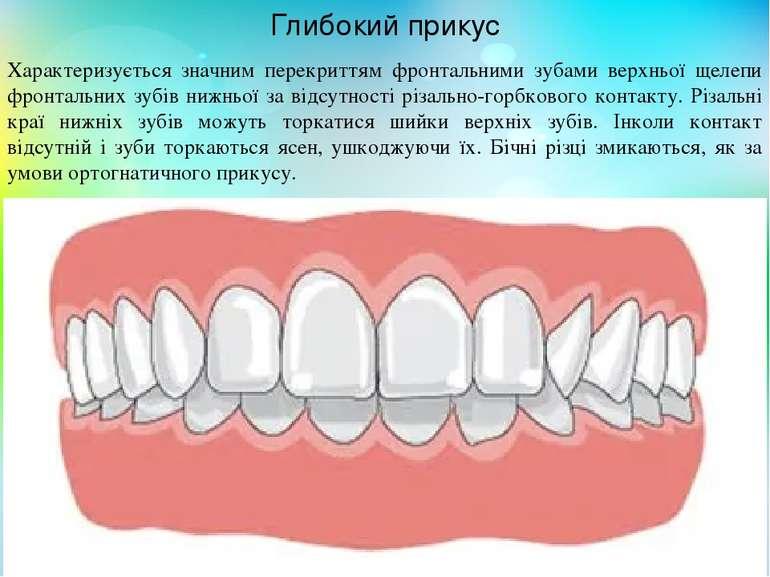 Характеризується значним перекриттям фронтальними зубами верхньої щелепи фрон...