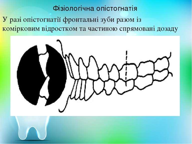 У разі опістогнатії фронтальні зуби разом із комірковим відростком та частино...