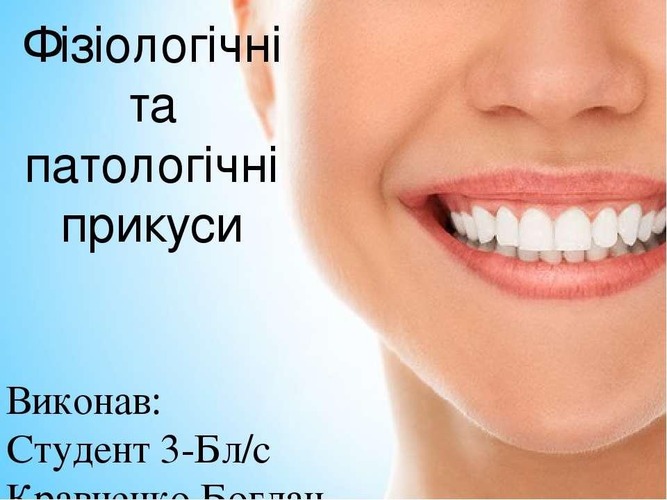 Фізіологічні та патологічні прикуси Виконав: Студент 3-Бл/с Кравченко Богдан