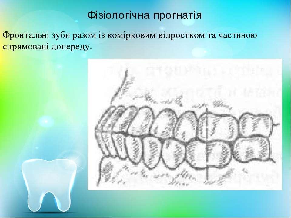 Фізіологічна прогнатія Фронтальні зуби разом із комірковим відростком та част...