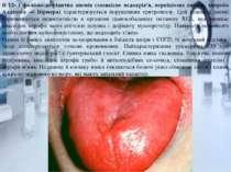 В 12- і фолієво-дефіцитна анемія (злоякісне недокрів'я, перніціозна анемія, х...
