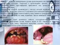 Лейкоз — злоякісне захворювання органів кровотворення, яке виникає внаслідок ...