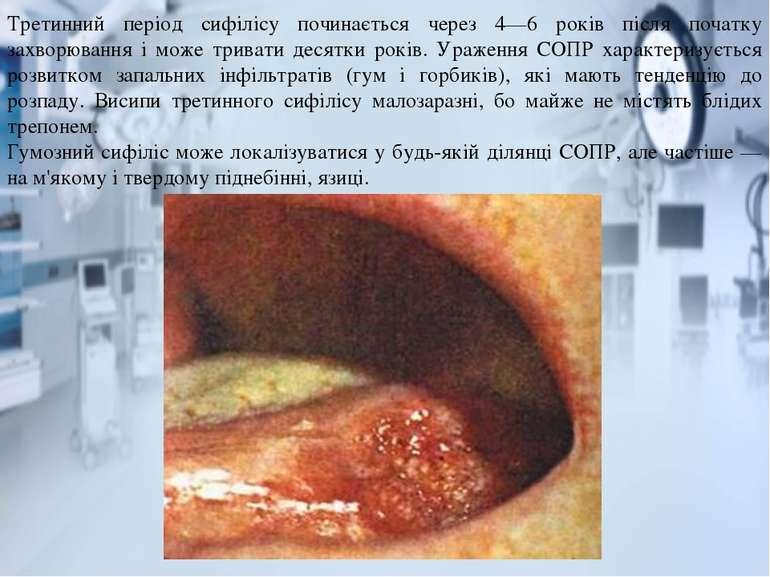 Третинний період сифілісу починається через 4—6 років після початку захворюва...