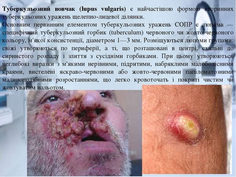 Туберкульозний вовчак (lupus vulgaris) є найчастішою формою вторинних туберку...