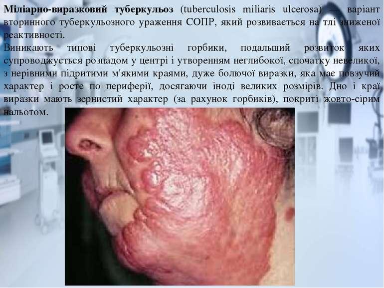 Міліарно-виразковий туберкульоз (tuberculosis miliaris ulcerosa) — варіант вт...