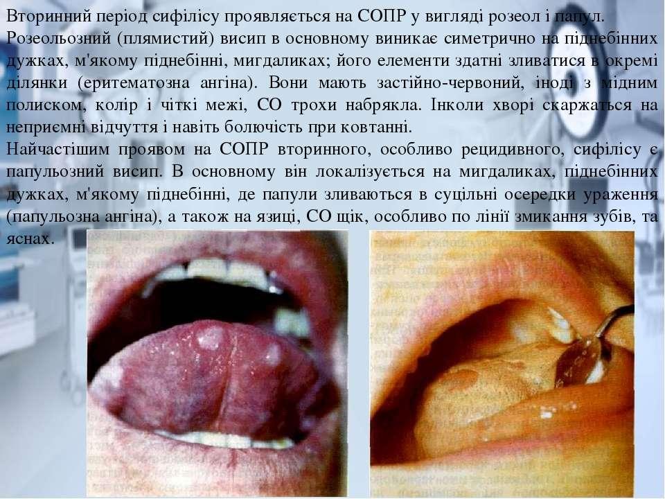 Вторинний період сифілісу проявляється на СОПР у вигляді розеол і папул. Розе...
