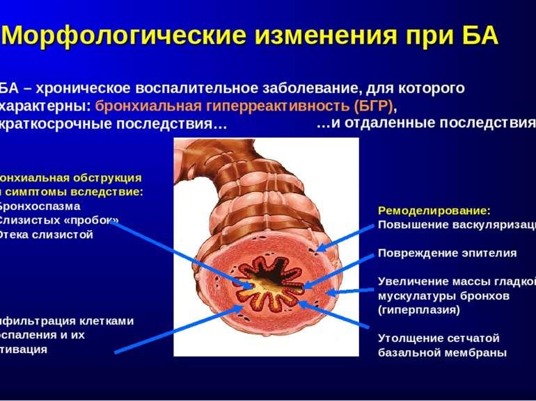 Морфологические изменения при БА БА – хроническое воспалительное заболевание,...