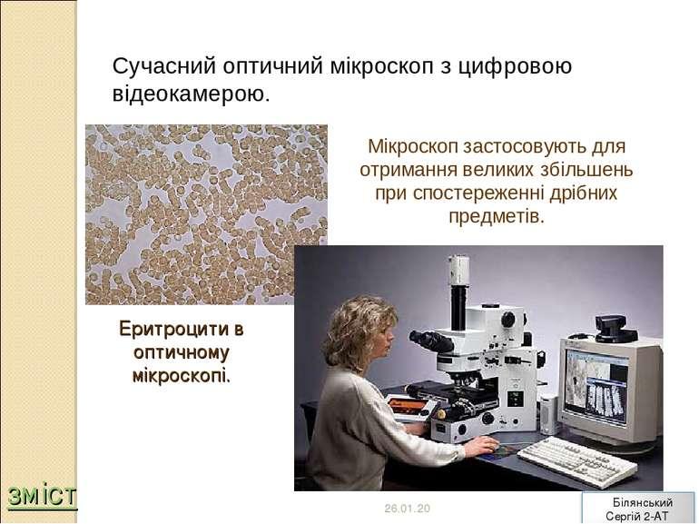 Сучасний оптичний мікроскоп з цифровою відеокамерою. Еритроцити в оптичному м...