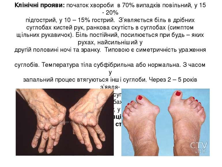 Клінічні прояви: початок хвороби в 70% випадків повільний, у 15 - 20% підгост...