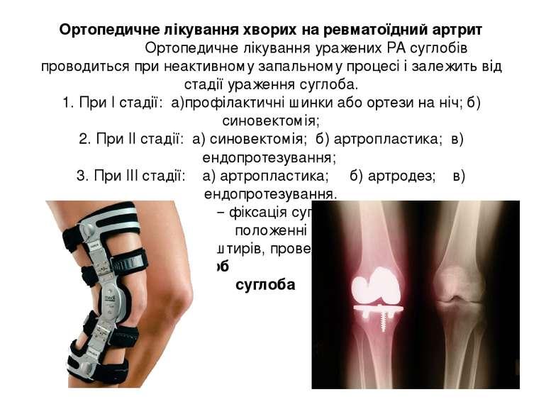 Ортопедичне лікування хворих на ревматоїдний артрит Ортопедичне лікування ура...