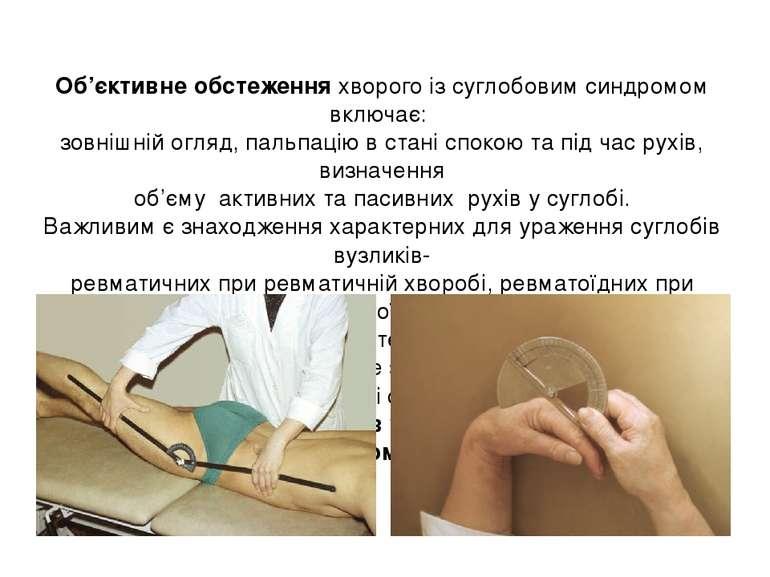 Об'єктивне обстеження хворого із суглобовим синдромом включає: зовнішній огля...