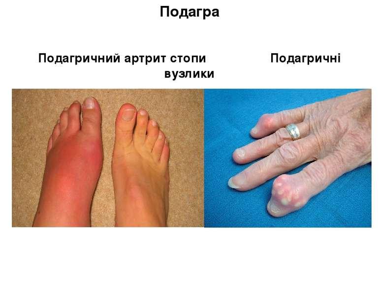 Подагра Подагричний артрит стопи Подагричні вузлики