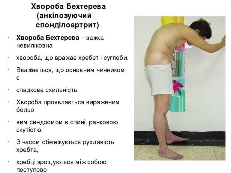 Хвороба Бехтерева (анкілозуючий спонділоартрит) Хвороба Бехтерева – важка нев...