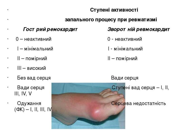 Ступені активності запального процесу при ревматизмі Гострий ремокардит Зворо...