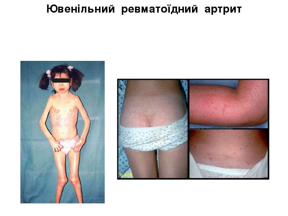Ювенільний ревматоїдний артрит