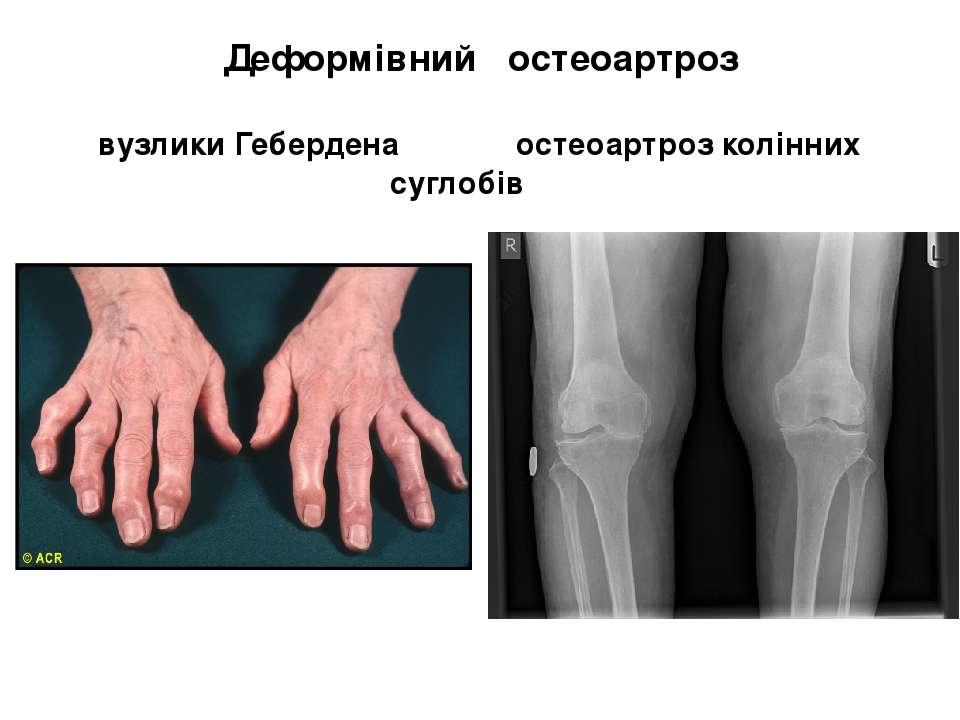 Деформівний остеоартроз вузлики Гебердена остеоартроз колінних суглобів