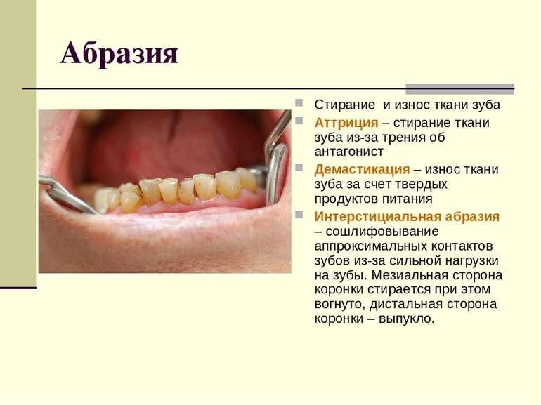 Абразия Стирание и износ ткани зуба Аттриция – стирание ткани зуба из-за трен...
