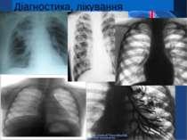 Діагностика, лікування