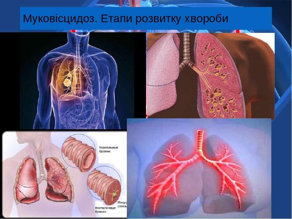 Муковісцидоз. Етапи розвитку хвороби