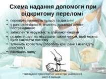 Схема надання допомоги при відкритому переломі перевірте наявність пульсу та ...