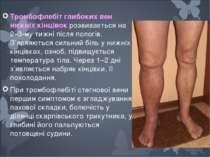 Тромбофлебiт глибоких вен нижнiх кiнцiвок розвивається на 2–3-му тижнi пiсля ...