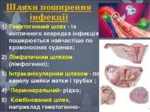 Шляхи поширення інфекції Гематогенний шлях - із септичного осередка інфекція ...