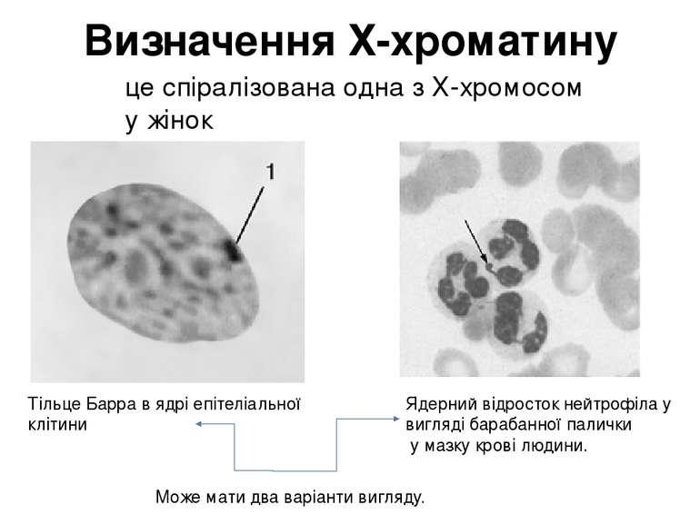 Визначення Х-хроматину Тільце Барра в ядрі епітеліальної клітини Ядерний відр...