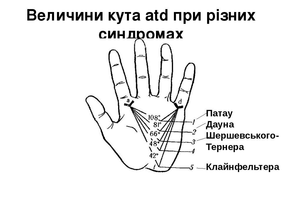 Величини кута atd при різних синдромах Патау Дауна Шершевського-Тернера Клайн...
