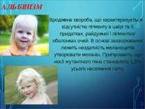 АЛЬБІНІЗМ Вроджена хвороба, що характеризується відсутністю пігменту в шкірі ...