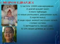 СИНДРОМ ЕДВАРДСА 1) частота: 1/5000 новонароджених; 2) довгий вузький череп; ...
