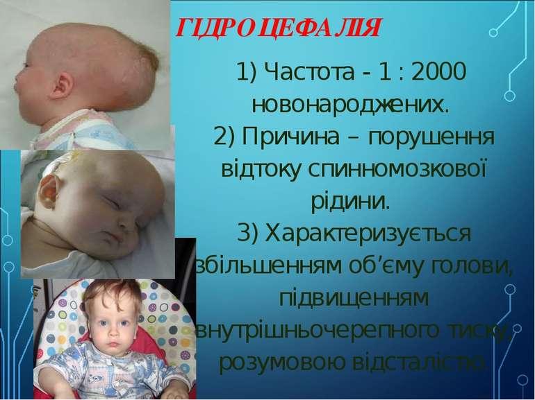 ГІДРОЦЕФАЛІЯ 1) Частота - 1 : 2000 новонароджених. 2) Причина – порушення ...