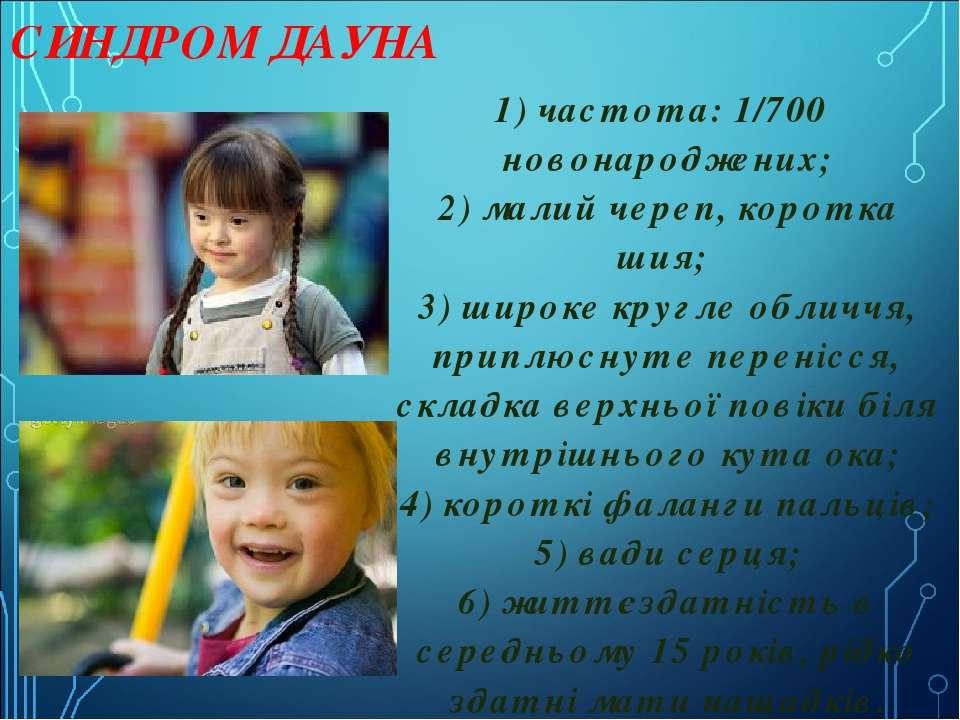 СИНДРОМ ДАУНА 1) частота: 1/700 новонароджених; 2) малий череп, коротка шия;...