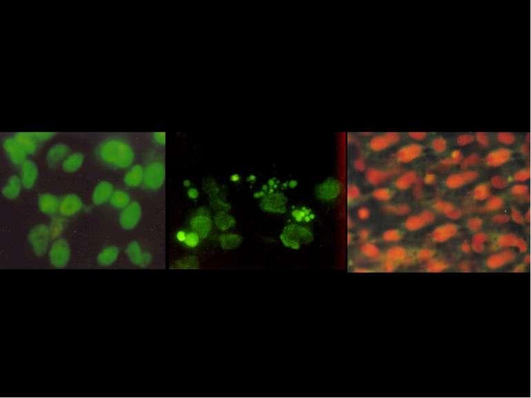 Визначення різних варіантів загибелі клітин за допомогою флуорисцентних барвн...