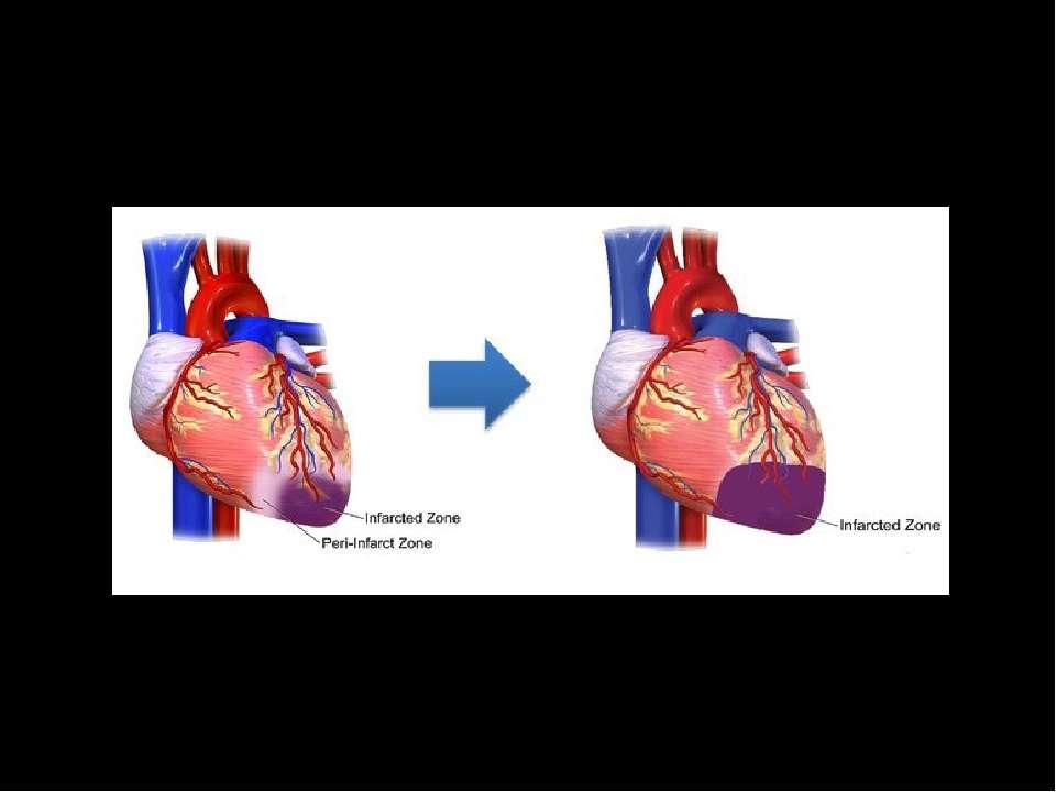 У пері-інфарктній ділянці на ранньому етапі інфаркту знаходяться клітини, в п...