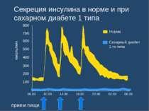 Секреция инсулина в норме и при сахарном диабете 1 типа 06.00 10.00 14.00 18....