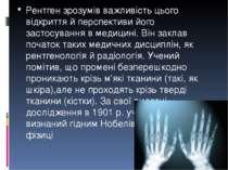 Рентген зрозумів важливість цього відкриття й перспективи його застосування в...