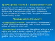 Хронічна форма гепатиту В з вираженим холестазом: Розвивається холангіт, хола...