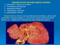 Морфологічні критерії цирозу печінки: 1 – дистрофія і некроз гепатоцитів 2 – ...