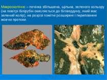 Макроскопічно – печінка збільшена, щільна, зеленого кольору (на повітрі білір...