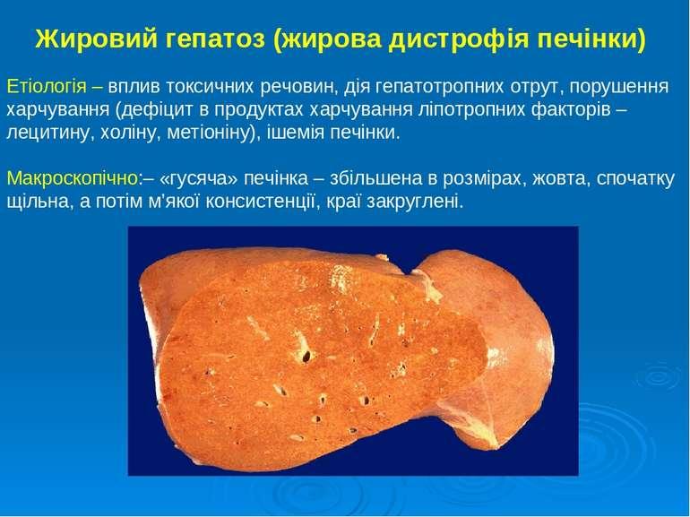 Жировий гепатоз (жирова дистрофія печінки) Етіологія – вплив токсичних речови...