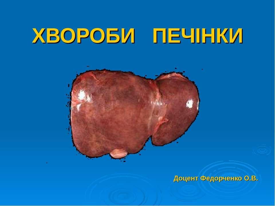ХВОРОБИ ПЕЧІНКИ Доцент Федорченко О.В.