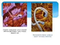 Сперматозоїд рухається по слизовій оболонці фалопієвих труб у пошуку яйцекліт...
