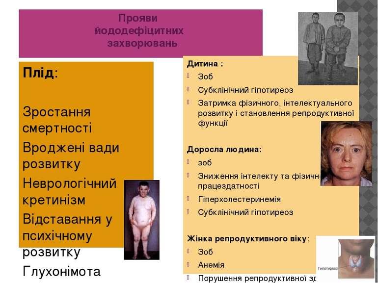 Прояви йододефіцитних захворювань Плід: Зростання смертності Вроджені вади ро...