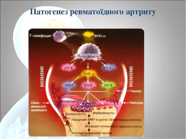 Патогенез ревматоїдного артриту