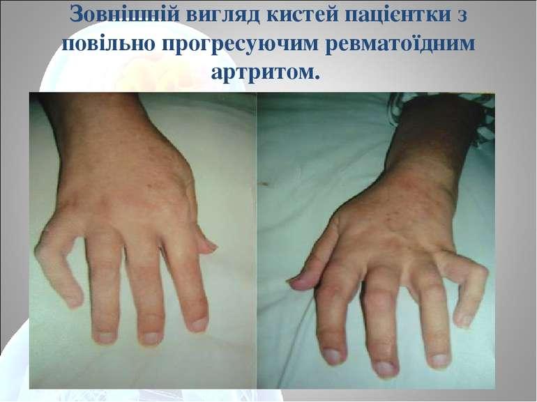 Зовнішній вигляд кистей пацієнтки з повільно прогресуючим ревматоїдним артритом.