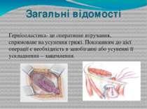 Загальні відомості Герніопластика- це оперативне втручання, спрямоване на усу...