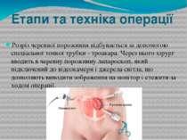 Етапи та техніка операції Розріз черевної порожнини відбувається за допомогою...